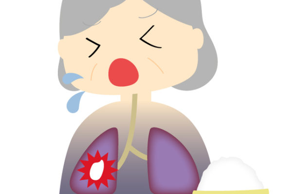 誤嚥性肺炎にならないための予防行動!